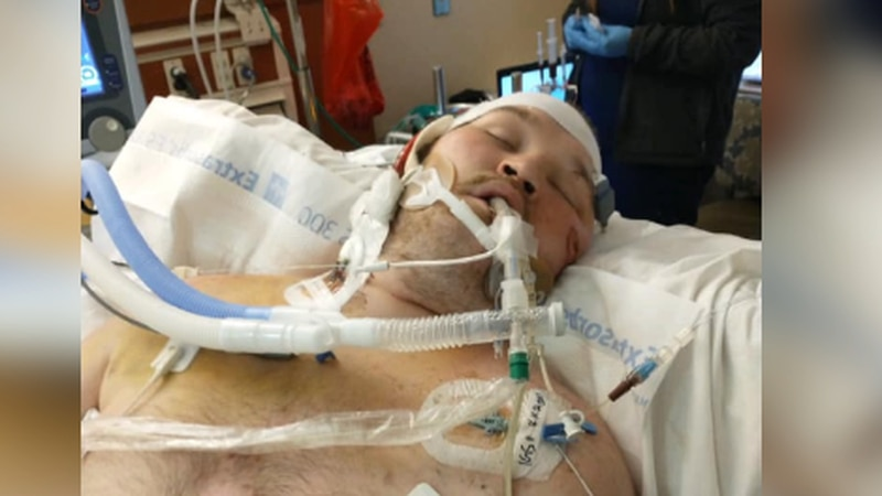 Ethan Snook has been in the hospital for weeks as he battles the delta variant.