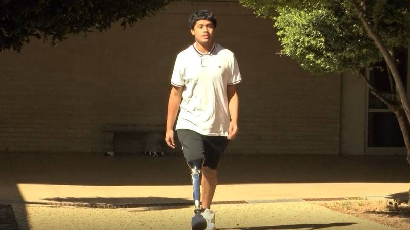 Josh Ramirez lost his leg in an accident almost two years ago.